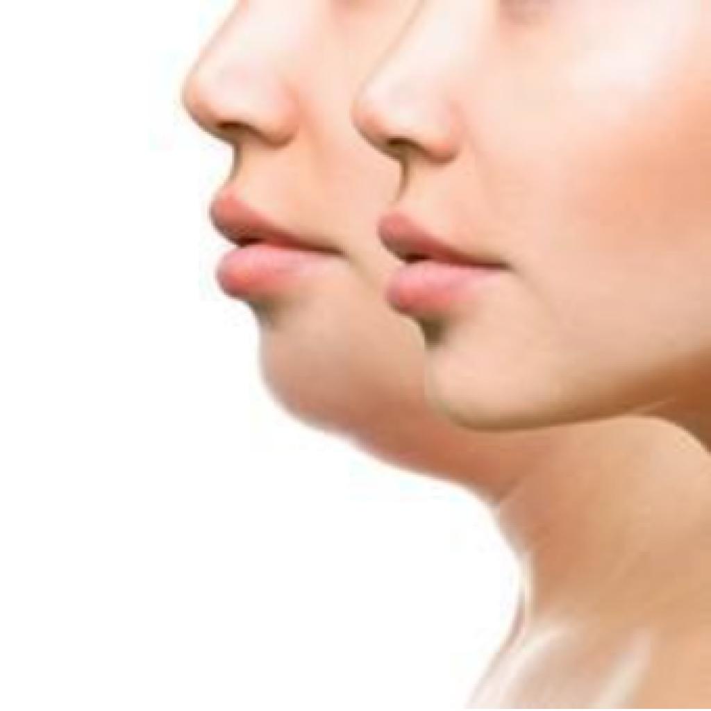 double chin women