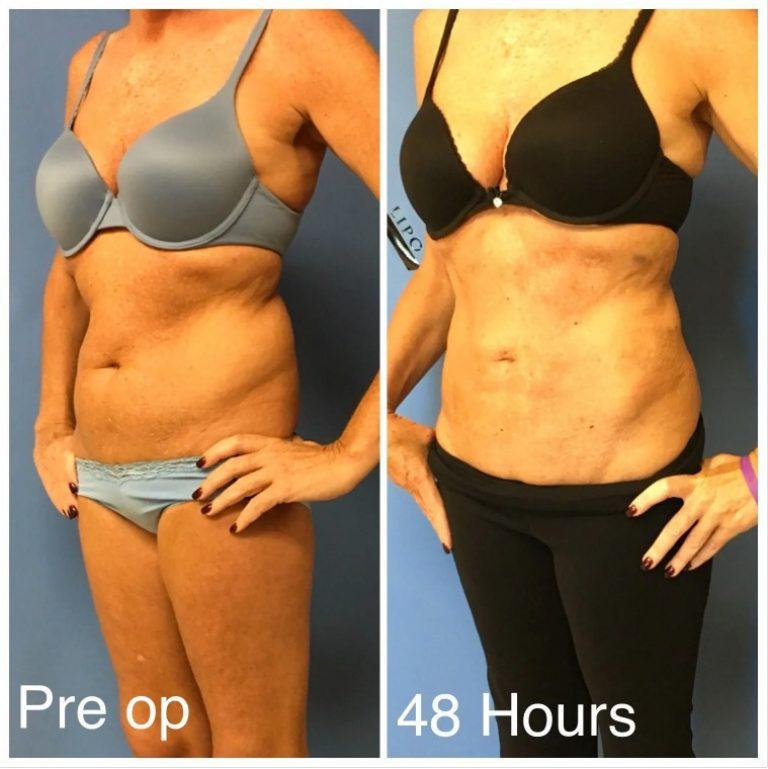 liposuction six pack in women