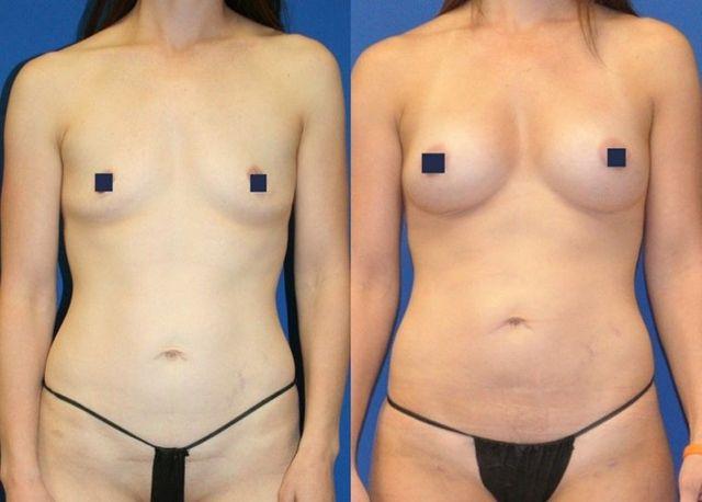 liposuction breast transfer